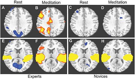 Meditadores experientes vs iniciantes.